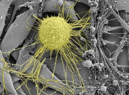 breast_cancer_cell